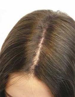 After-Hair Boom для роста волос