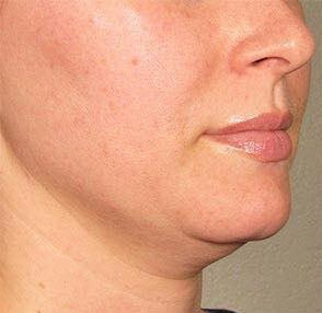 Before-Lipolytic injections 3